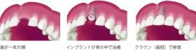インプラント 1本だけ歯が欠けている状態