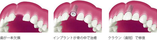 インプラント 歯が一本だけ欠損している場合