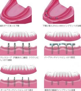 インプラント 歯を全て失った場合