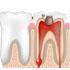 お子様の虫歯予防