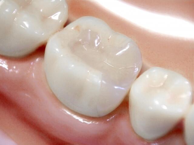 銀歯(金銀パラジウム)とアマルガム